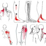 mappa trigger points