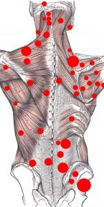 Trigger-Point-schiena